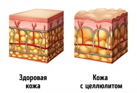 Брошюра антицеллюлит