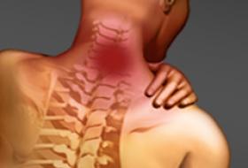 Профилактика остеохондроза